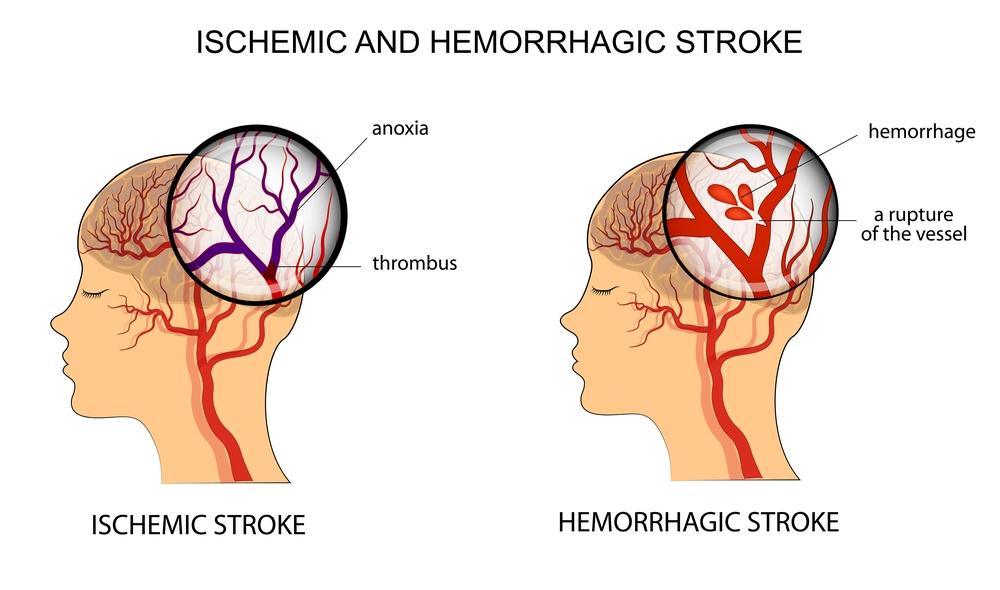 Ischemic and Hemorragic Stroke