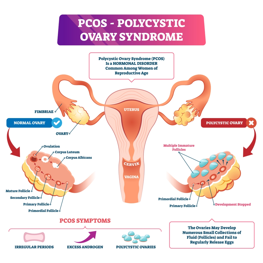 PCOS Complications