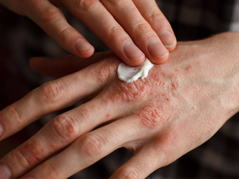 Ayurveda for Eczema or Skin Itching