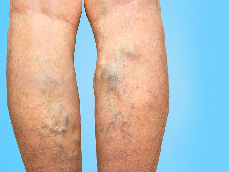 Ayurveda Treatment for Varicose Vein